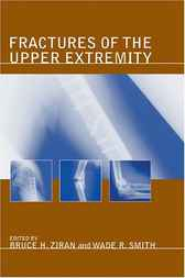 Fractures of the Upper Extremity by Bruce H. Ziran