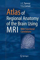 Atlas of Regional Anatomy of the Brain Using MRI by Hans O. Lüders