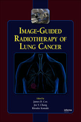 Image-Guided Radiotherapy of Lung Cancer by James D. Cox