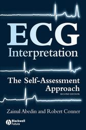 ECG Interpretation by Zainul Abedin
