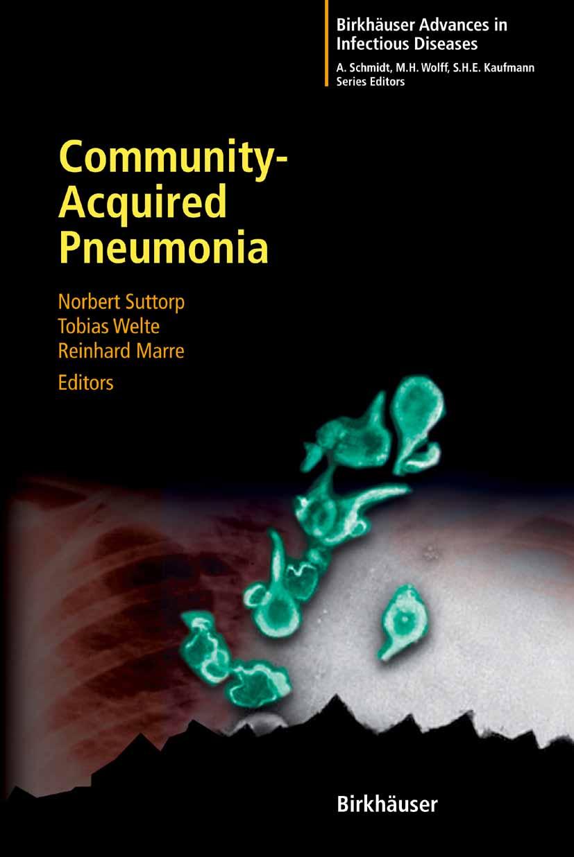pneumonia disease research paper Research critique: risk of ventilator associated pneumonia research paper.