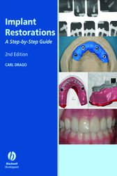 Implant Restorations by Carl Drago