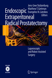 Endoscopic Extraperitoneal Radical Prostatectomy
