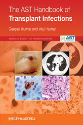 The AST Handbook of Transplant Infections by Deepali Kumar