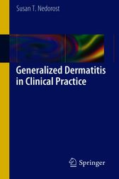 Generalized Dermatitis in Clinical Practice by Susan T. Nedorost
