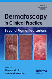 Dermatoscopy in Clinical Practice