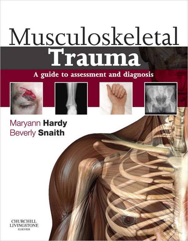 musculoskeletal disorders essay