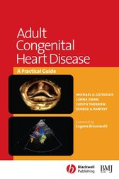 Adult Congenital Heart Disease by Michael A. Gatzoulis