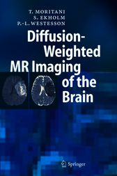Diffusion-Weighted MR Imaging of the Brain by T. Moritani