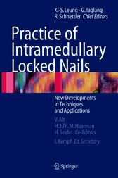 Practice of Intramedullary Locked Nails by Volker Alt