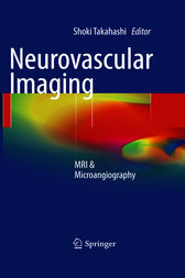Neurovascular Imaging by Shoki Takahashi