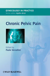 Chronic Pelvic Pain by Paolo Vercellini