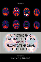Amyotrophic Lateral Sclerosis and the Frontotemporal Dementias by Michael J. Strong