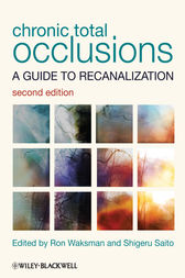 Chronic Total Occlusions by Ron Waksman