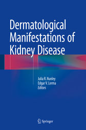 Dermatological Manifestations of Kidney Disease by Julia R. Nunley
