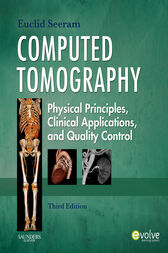 Computed Tomography - E-Book by Euclid Seeram